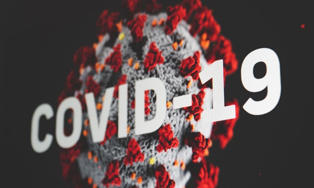 COVID19 – ADVICE FOR STARTUPS & SMES